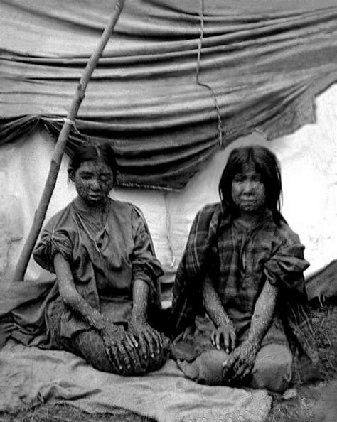 For one of the Ho-Chunk girls above, a smallpox outbreak