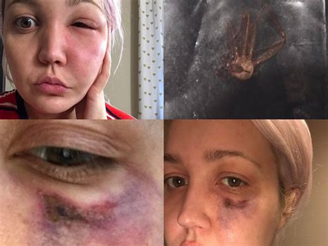 Meghan Linsey Suffers Nasty Brown Recluse Spider Bite