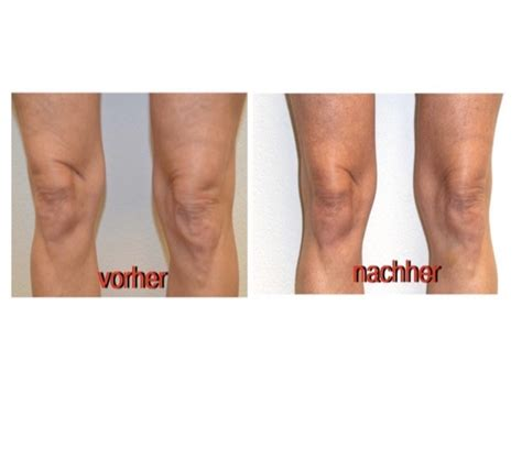 Knie-Straffung - Medical Beauty Concept